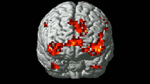 brain-scan-study