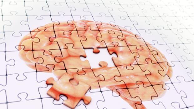dementia-puzzle-concept