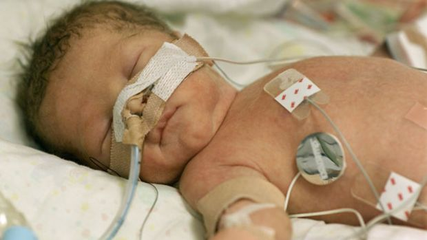 thesis on infant mortality Free mortality rates papers, essays, and research papers.
