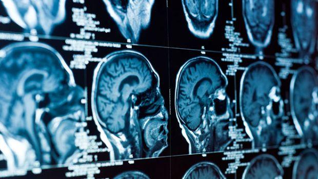brain-disease
