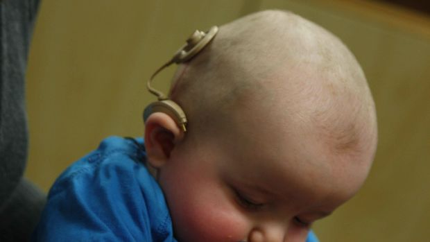 An infant with a cochlear implant.