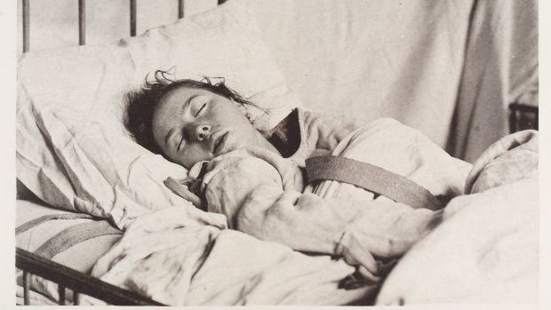 "A female patient diagnosed with ""sleep hysteria"" wearing a straitjacket, 1888."