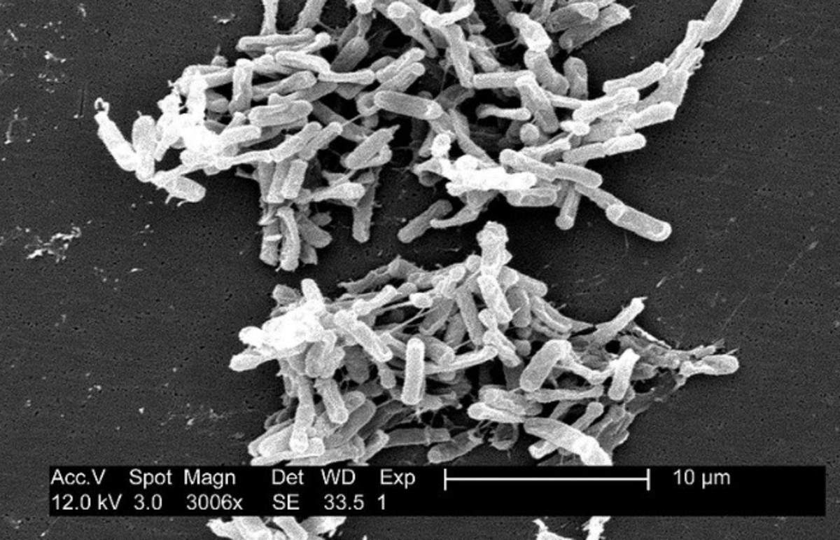 Clostridium difficile under a microscope. (Photo: Public Domain)