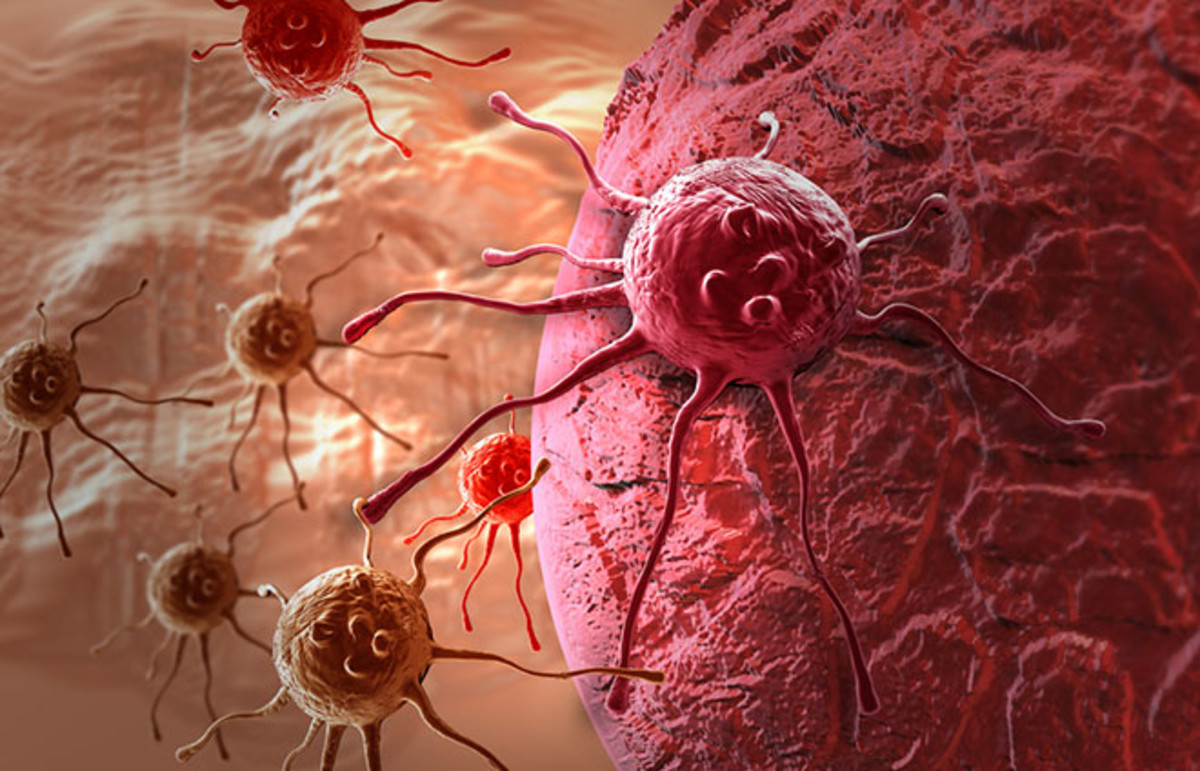 Depiction of a cancer cell made using 3-D software. (Photo: jovan vitanovski/Shutterstock)