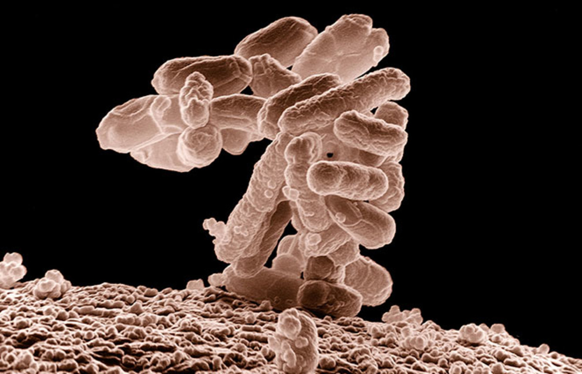 Fecal bacteria at 10,000x magnification. (Photo: Public Domain)