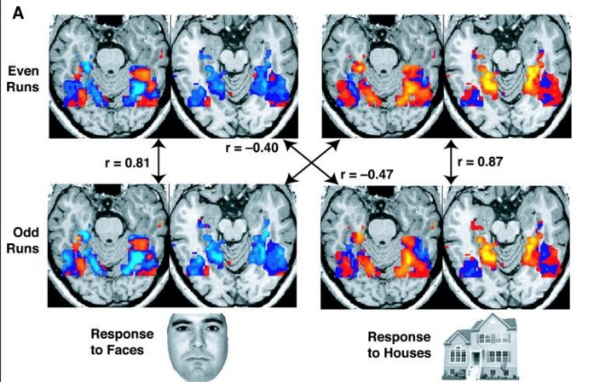 FMRI scans from another study. (Photo: Public Domain)