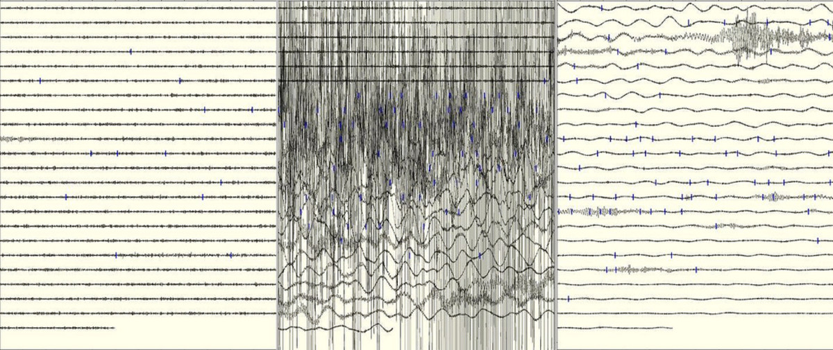 Seismogram of the 2011 Japan earthquake. (Photo: P K/Flickr)