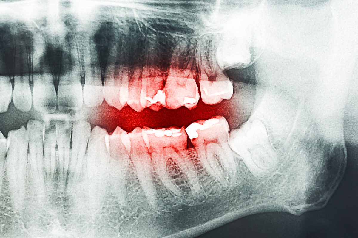 It apple juice to blame for this unlucky person's decaying teeth? (Photo: Radu Bercan/Shutterstock)