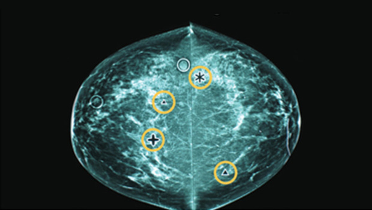 CAD markings on a mammogram. (Photo: Group Health Research Institute)