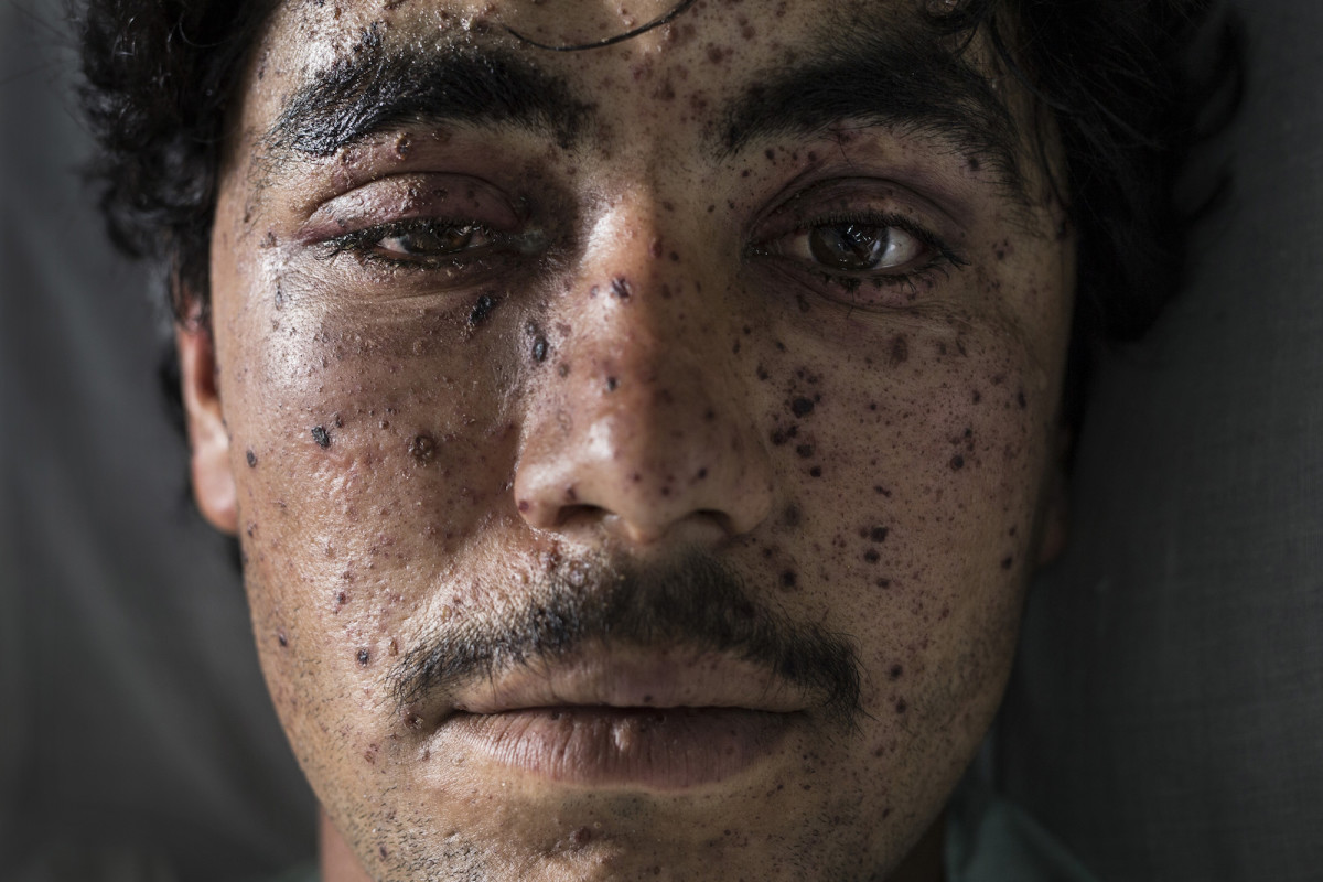Lashkar Gah, Afghanistan: In 2015, after Taliban skirmishes in the town of Sangin, Kharim Ahmad, an Afghan civilian, receives treatment from shrapnel wounds and other injuries at an emergency hospital.