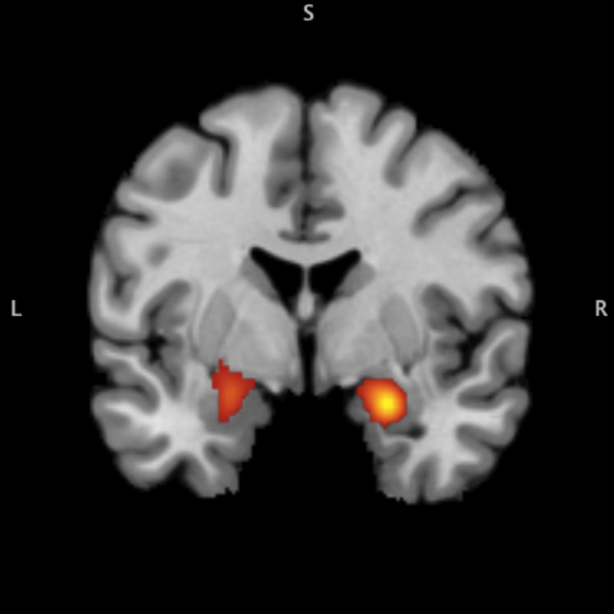 "Youth with a history of trauma exhibit a hyperactive amygdala response to negative emotional cues. (This image originally appeared in Tyler C. Hein and Christopher S. Mark's ""Research Review: Neural Response to Threat in Children, Adolescents, and Adults After Child Maltreatment"" in the Journal of Child Psychology and Psychiatry, Vol. 58, Issue 3.)"