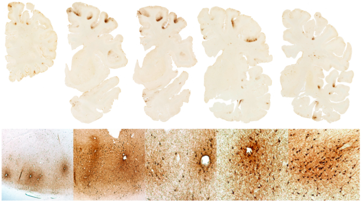 Slides from the neuropathological examination of Aaron Hernandez's brain.