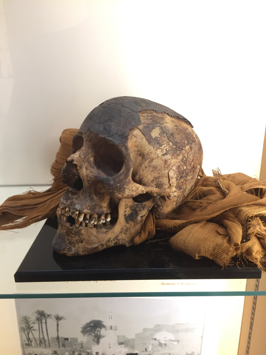 A mummified head, unwrapped, part of the Cazenovia Public Library's Exploring Egypt exhibit.